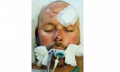 Czy znasz tego człowieka? Miał wypadek i stracił pamięć - Serwis informacyjny z Wodzisławia Śląskiego - naszwodzislaw.com
